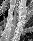 Filamentous iron oxidizing bacterium, SEM