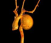 Aortic aneurysm, 3D CT scan