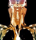 Narrowed carotid arteries, CT angiogram