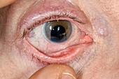 Coloboma and aphakia of the eye