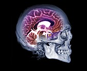 Human skull and brain, CT and MRI scans