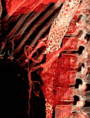 Stent in aortic dissection, 3D CT angiogram