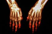 Arthritis, X-ray