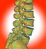 Lumbar spine degeneration, illustration