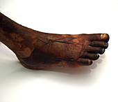 Gangrenous foot in diabetes