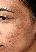 Melasma skin discolouration
