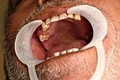 Oral ulcer