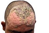 Pemphigus blistering