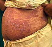 Psoriasis on the abdomen