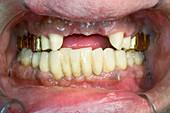 Dental bridge preparation