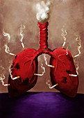 Illustration of cigarettes stuck on lungs