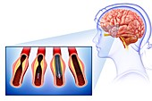 Stroke treatment, illustration