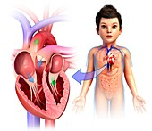Child's heart chambers, illustration