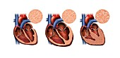 Normal and unhealthy hearts, illustration
