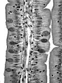 Small intestine, light micrograph