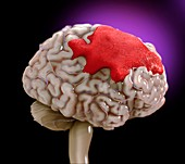 Brain haemorrhage, illustration
