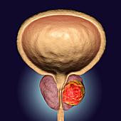 Prostate cancer, illustration