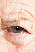 Elderly woman's eye