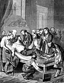 William Morton using ether anaesthesia, 19th C illustration