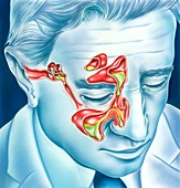 Sinus and ear infections, illustration