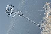 Amoeba from shower drain, light micrograph