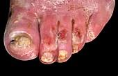 Necrotic toes in diabetes