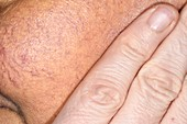 Jaundiced skin in alcoholism