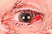 Tennis ball eye injury