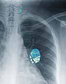 Vagus nerve stimulator, X-ray