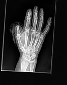 Thumb amputation injury, X-ray