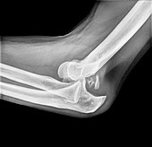 Dislocated elbow, X-ray