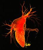 Myocardial infarction, 3D CT angiogram