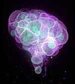 Colon cancer cells, fluorescence micrograph