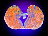 SARS-CoV lung damage, 3D CT scan