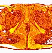 Male perineum, 3D MRI scan