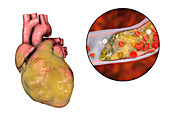 Heart disease, illustration
