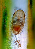 Mite larva, light micrograph