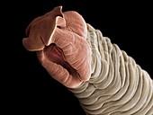 Tapeworm head, SEM