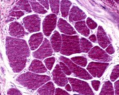 Skeletal muscle fibres, light micrograph