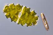 Euastrum desmid, light micrograph