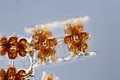 Odontella sp. diatom, light micrograph