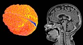 Child's brain and head, 3D and midline sagittal MRI scans