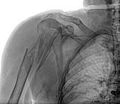 Broken upper arm bone, X-ray