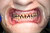 Teeth during dental crown surgery