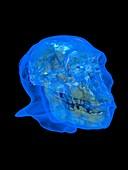 Australopithecus 'Karabo' skull and head, illustration