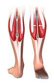 Skeletal-muscle pump for leg veins, illustration