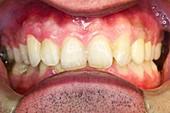Dental malocclusion correction