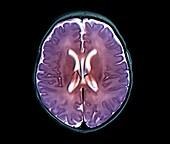 Brain ventricle anomaly, MRI scan