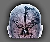 Cerebral arteriovenous malformation, 3D CT scan