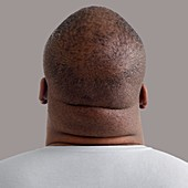Close up of overweight man's neck